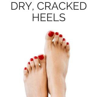 I hate getting dry, cracked heels especially in the summer wearing sandals all the time. This is the easy way to heal and prevent rough cracked skin on your feet-so easy!