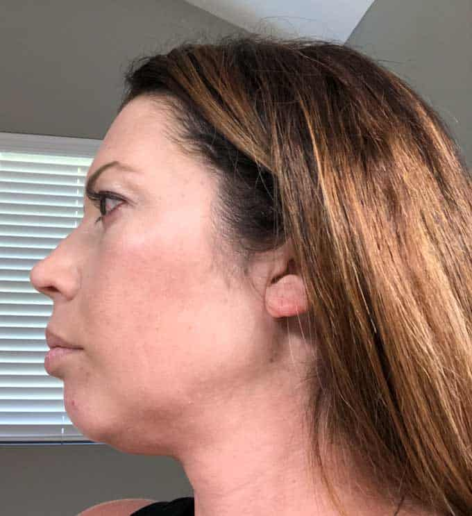 side view after picture of woman in her late 30s after a vampire facial