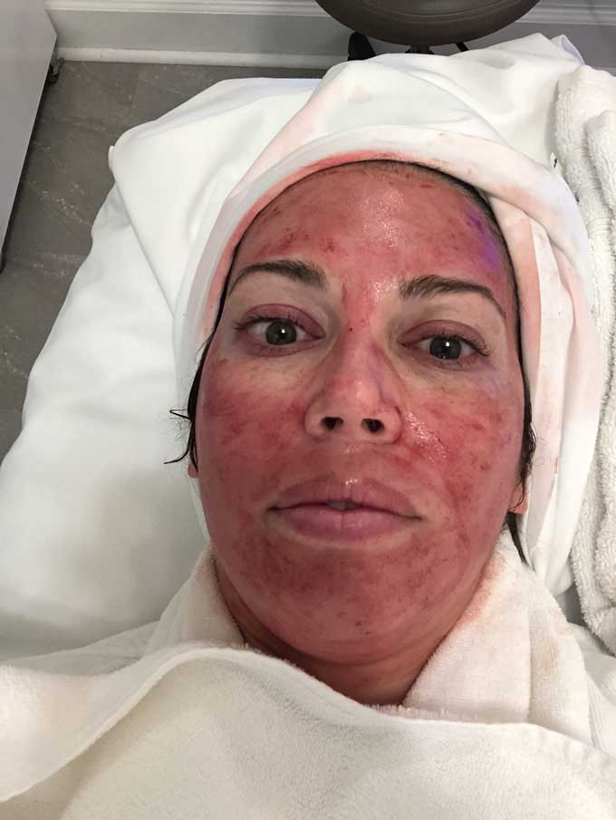 face after vampire facial prp microneedling