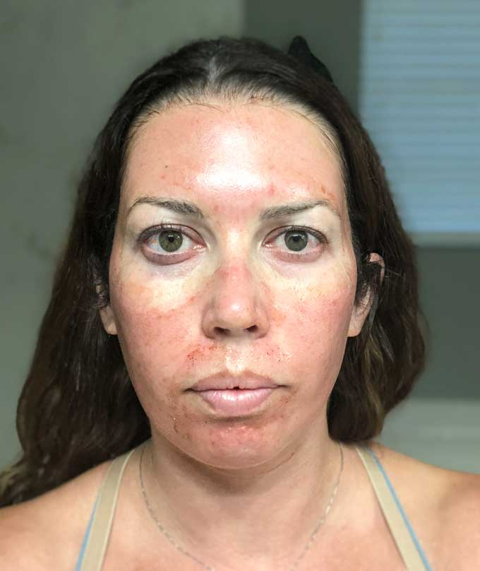 inflamed face prp facial