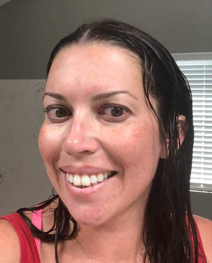 face after prp facial