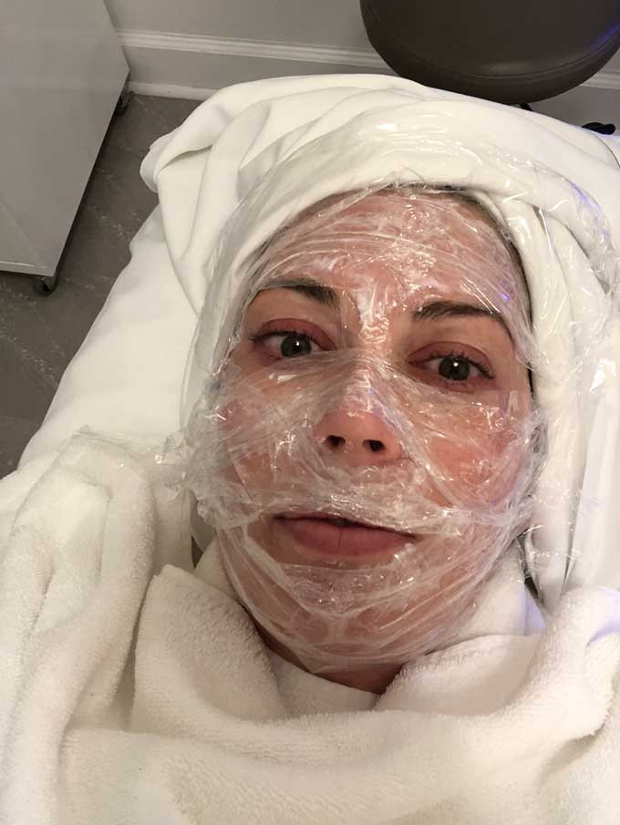 woman with towel covering her hair and plastic wrap on her face for numbing for vampire facial
