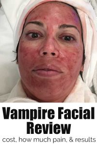 red face after prp vampire facial